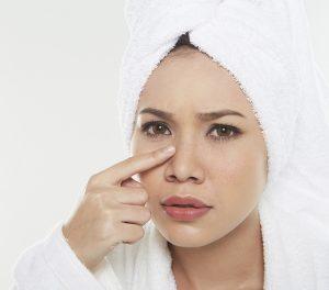 Acne problems